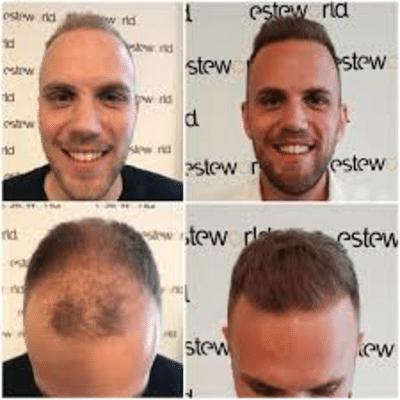 Zeg vaarwel tegen kaalhoofdigheid dankzij een haartransplantatie van Esteworld